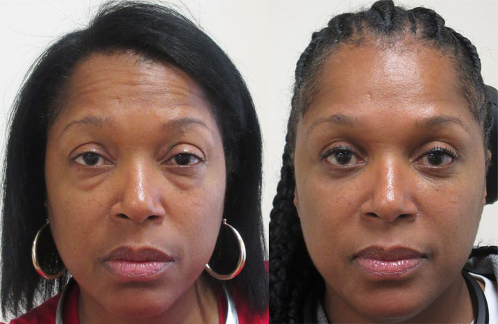 Patient 2: Lower Blepharoplasty